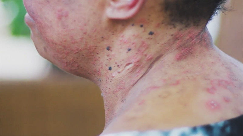 griot mag a gentle _magic documentario su creme schiarenti della pelle skin bleaching sudafrica south africa by di Tseliso-Monaheng